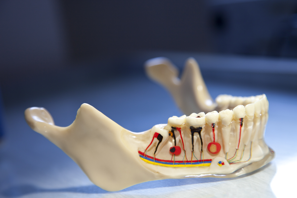 Root canal treatment in Budapest