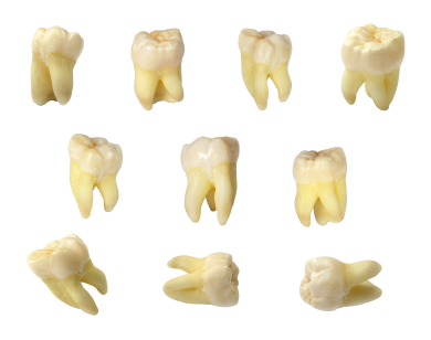 is wisdom from recovery removal how long teeth