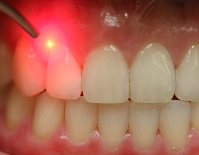 Affordable laser dentistry in Hungary