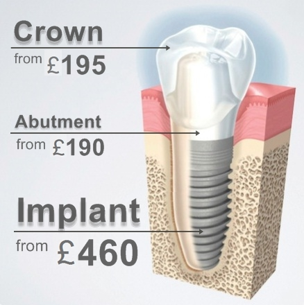 Dental Implant Hungary From 460 Gbp 585 Eur Cheap Teeth